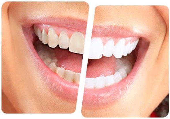 1-clareamento dental