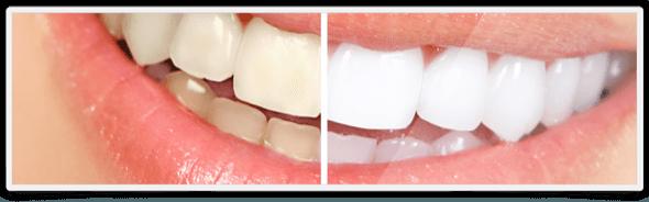 3-clareamento dental