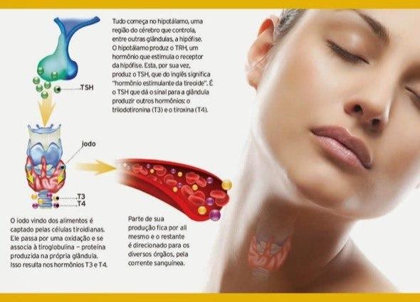 2-Hipotireoidismo