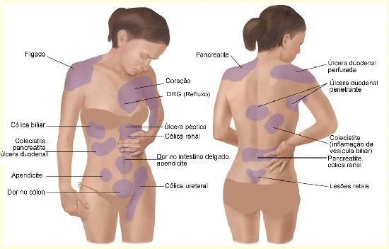 3-motivos dores nas costas postura