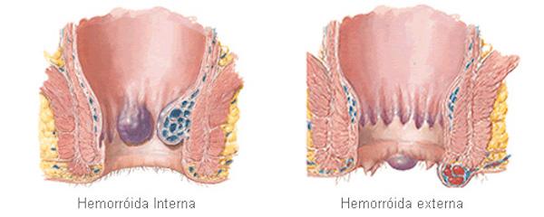 Combater hemorroidas2