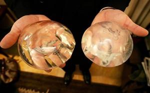 Troca de próteses de silicone 1