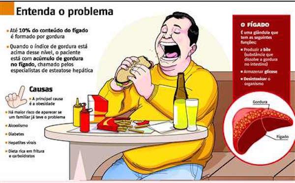 Gordura no fígado esteatose1