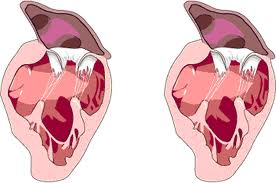 Sopro Cardíaco tratamento 2