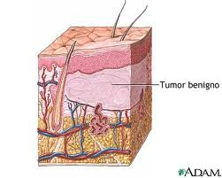 o que é tumor benigno 2