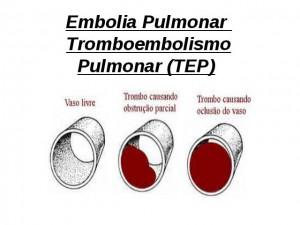 Como Acontece a Embolia Pulmonar 2