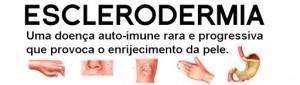 Dia da Esclerodermia Sistêmica em SP: 29 de junho