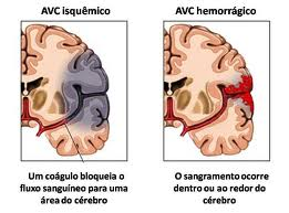 Quais as sequelas e sintomas do AVC 2