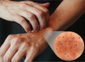 Doenças de pele causadas por água 1