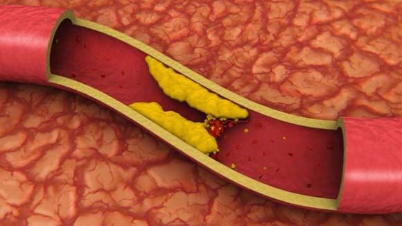 Controlar o colesterol 02