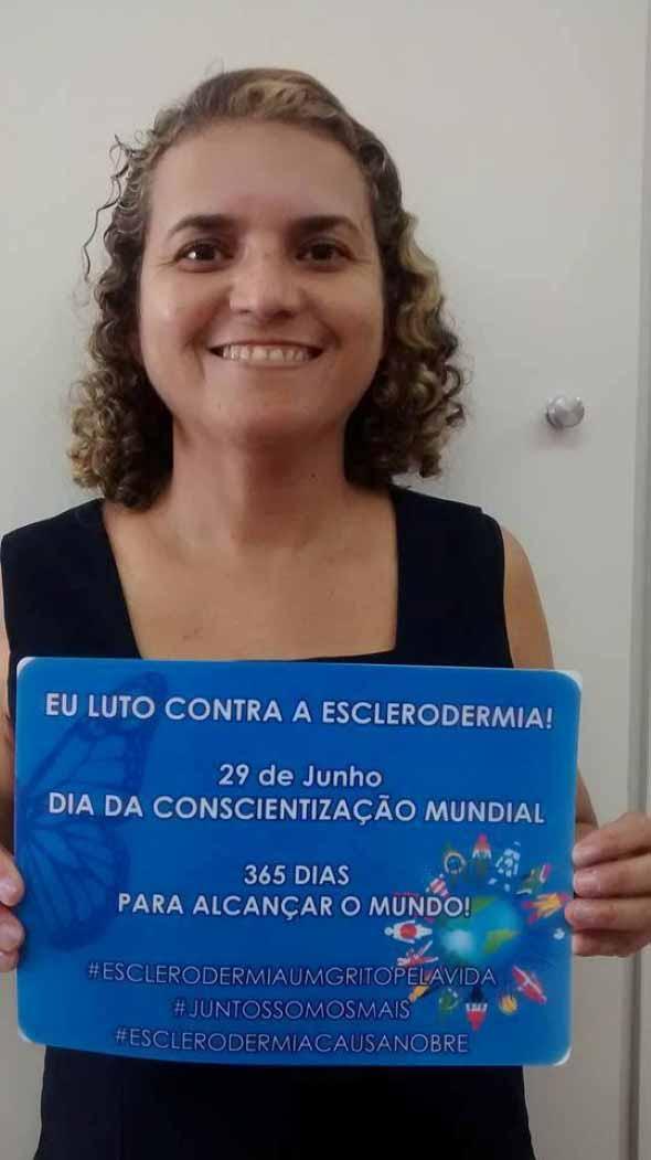Esclerodermia 03