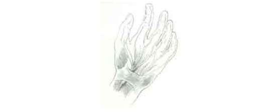 sindrome da mão inchada