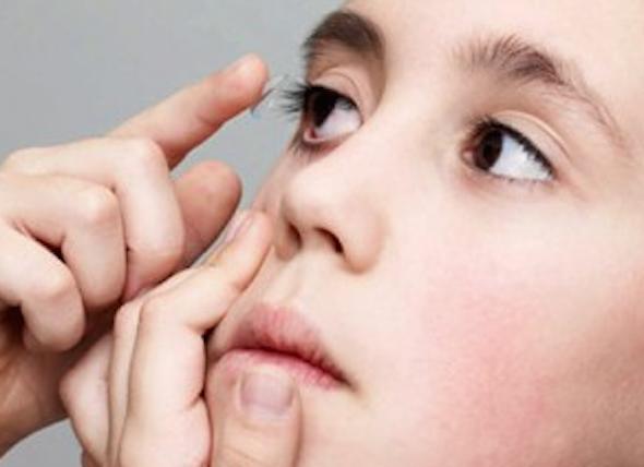 Criança pode usar lente de contato?1
