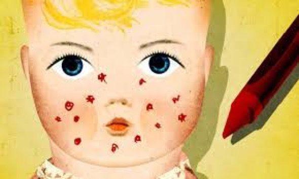 4-espinhas_e_acnes_em_bebes