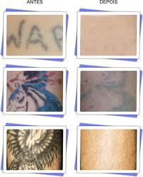 remover tatuagem com laser
