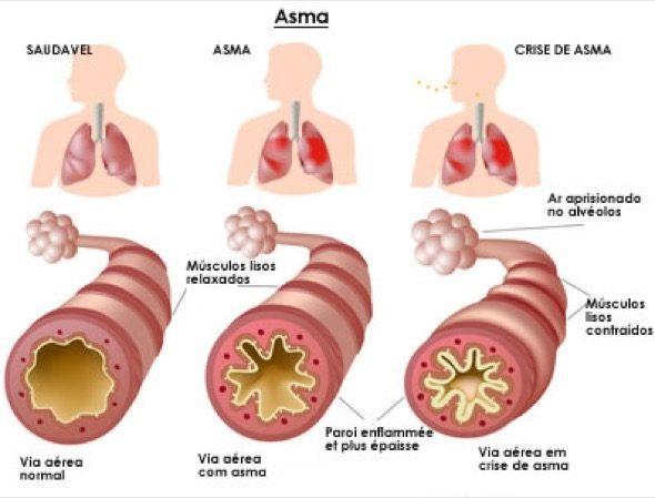 1-bronquite x asma