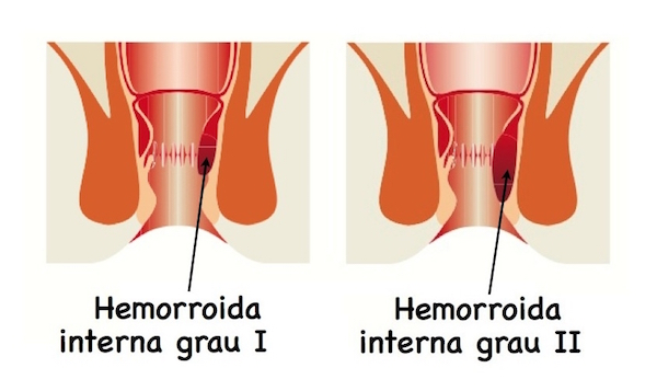Combater hemorroidas