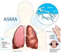 tratamento sintomas bronquite alergica