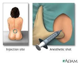 anestesias raquidiana