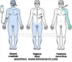 tipos de anestesicos