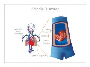 Como Acontece a Embolia Pulmonar
