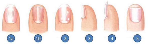 remover mancha branca da unha2